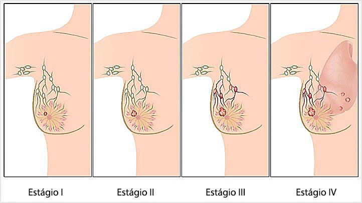 Outubro Rosa Conscientizar e mobilizar quanto à detecção precoce é fundamental para sucesso no tratamento contra o câncer de mama